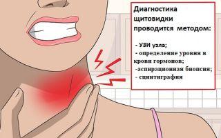 Диагностика узлов щитовидной железы