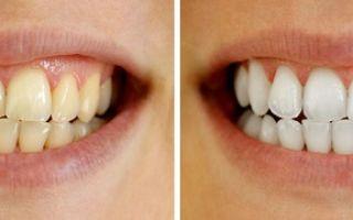Про отбеливание зубов: плюсы и минусы