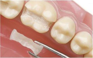 Микропротезирование зубов – быстро и эффективно восстановит зубной ряд