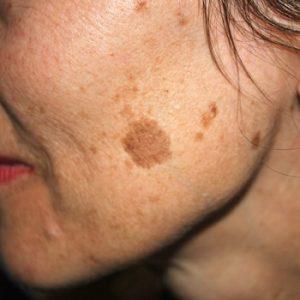 лазерные процедуры в косметологии