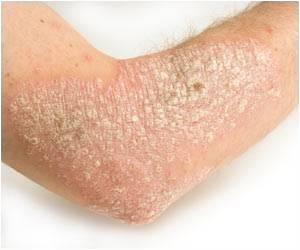 аллергия на креветки симптомы фото