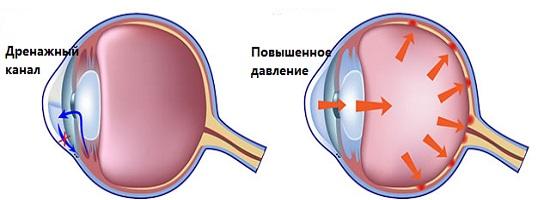 глазная глаукома