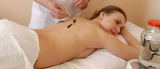 Процедура гирудотерапии
