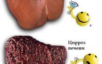 Питание при циррозе печени