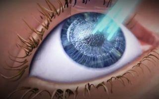 Особенности коррекции зрения с помощью лазера