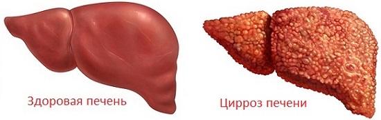 Цирроз печени как проявляется