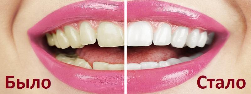 Исправление вида зубов