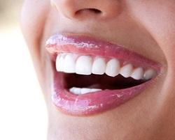 выпрямлене зубов брекетами
