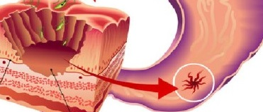 лечение гастрита питанием